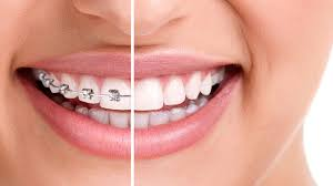 Treating Crooked Teeth And Misaligned Jaws