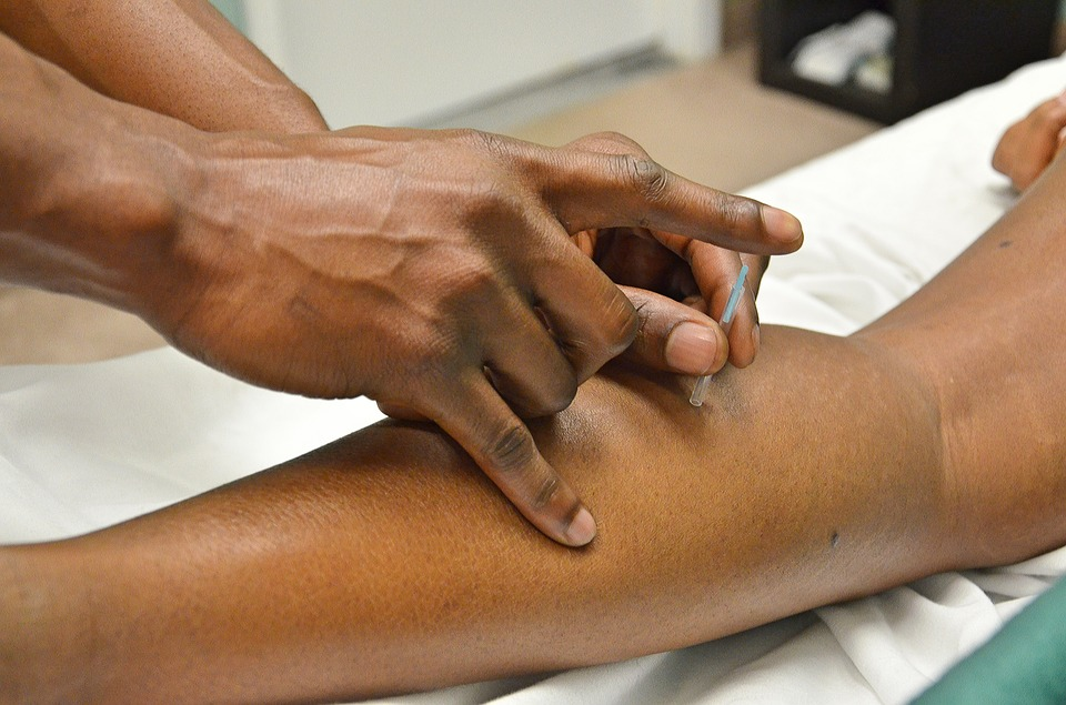 Why Is Acupuncture A Treatment So Many People Use?