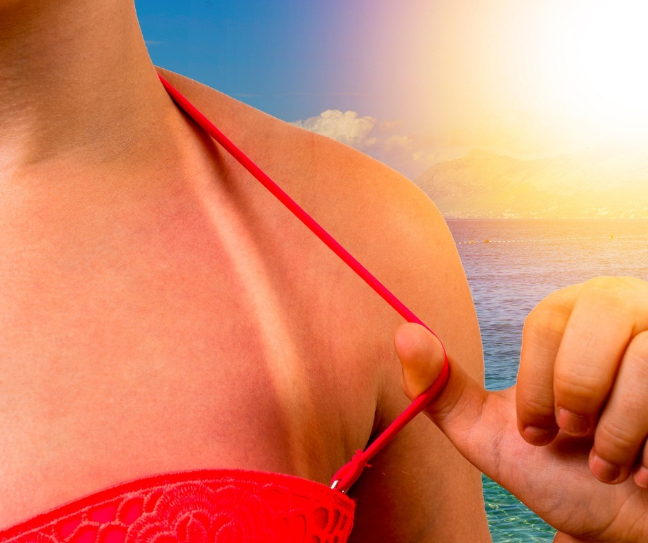 Qgenics Announces Natural Polyphenols Formulation to Treat Sun-Related Skin Conditions as part of UV Awareness Month